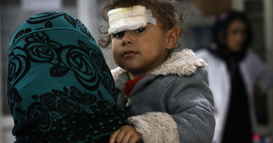 A wounded Iraqi child. (Photo: SAFIN HAMED/AFP via Getty Images)