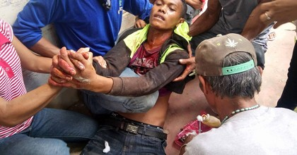 A wounded farmer is assisted by other demonstrators after Friday's mass shooting by security forces in the Philippines. (Photo: Kilab Multimedia)